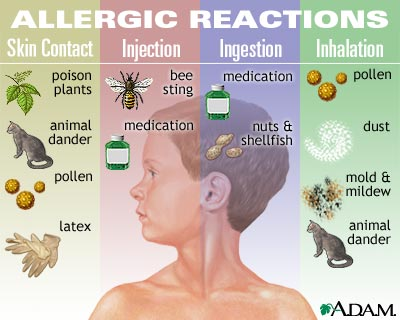 Alergijski bronhitis i prirodno rešenje