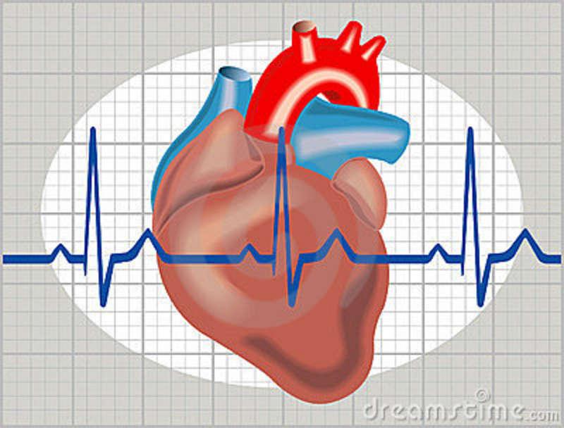 cardiac-arrhythmia-18864765