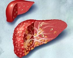 masna jetra