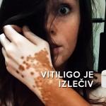 Vitiligo je izlečiv