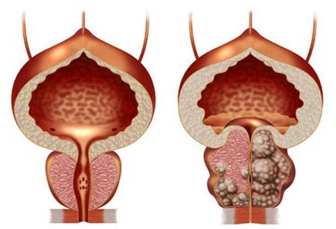 Adenom de prostata ecograf