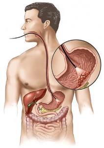Lečenje tumora želuca