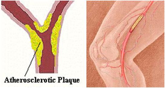 Znaci koji upozoravaju na sužene arterije