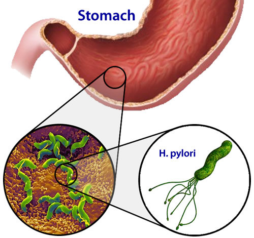 Narodni lekovi za lečenje Helicobacter pylori i gastritisa