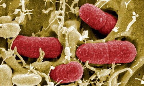 Uloga fitoterapije u lečenju urinarnih infekcija.