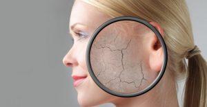 Uloga kože u zaštiti od infekcije