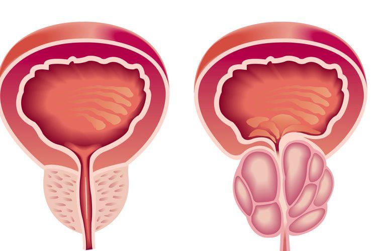 A prostatitis meghal vagy sem